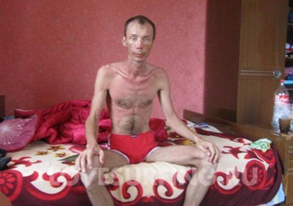 В политическом Telegram щекастой Соболь показали, как выглядит голодающий человек
