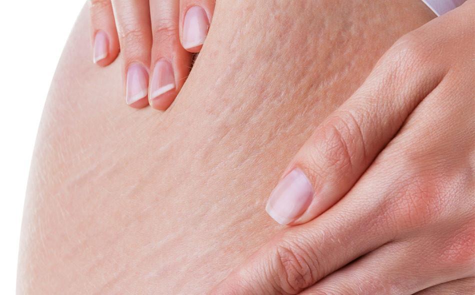 Kết quả hình ảnh cho Điều trị rạn da tại nhà