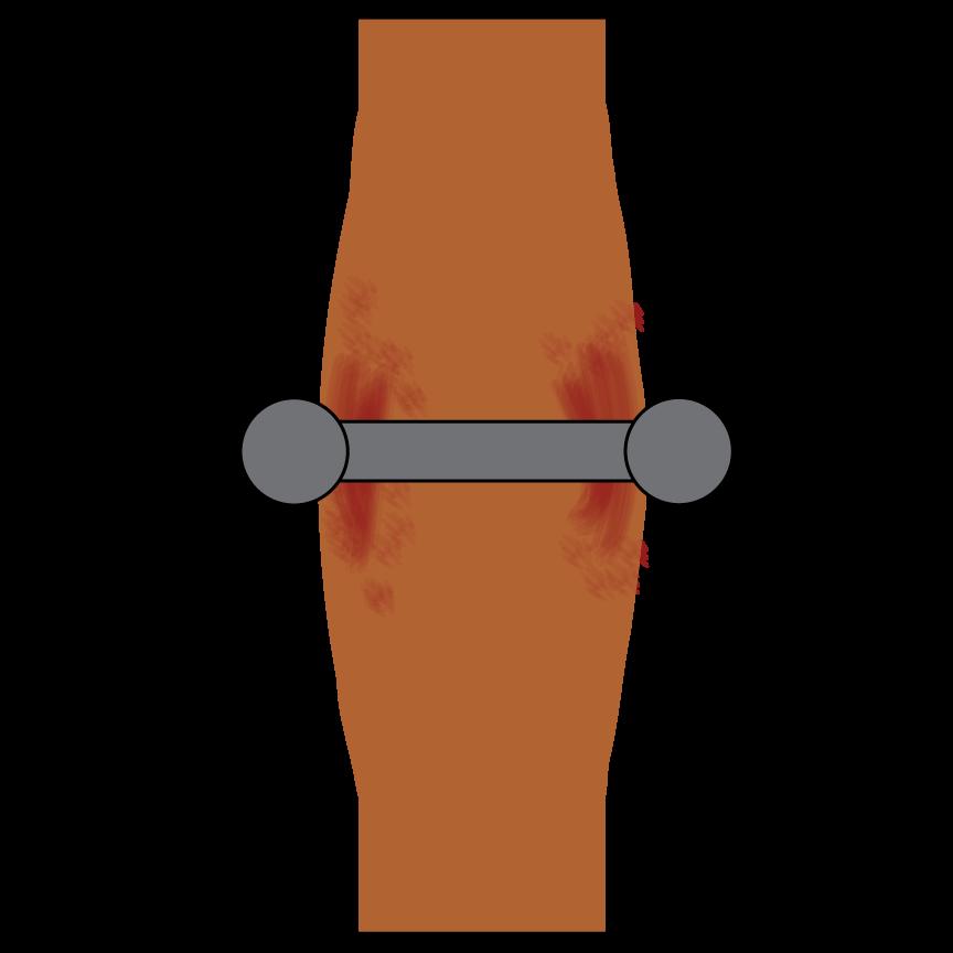 swollen-barbell.png