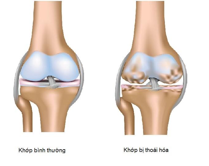 Khi bị thoái hóa khớp, lớp sụn và xương dưới sụn bị mài mòn dần