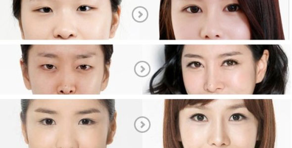 korean-eyes-surgery-1.jpg