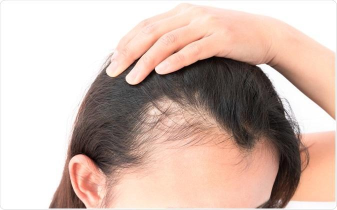 Top 7 Superb Reasons to Use Castor oil for Baldness 2