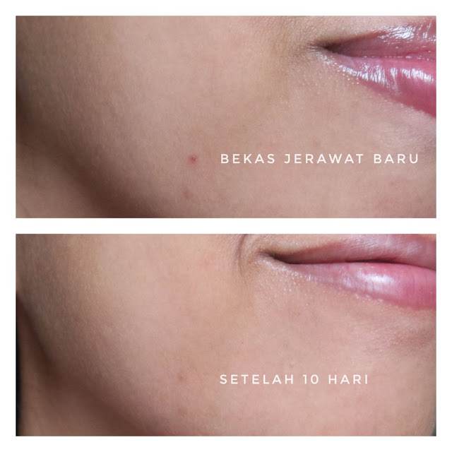 Before after hasil penggunaan Scarlett serum