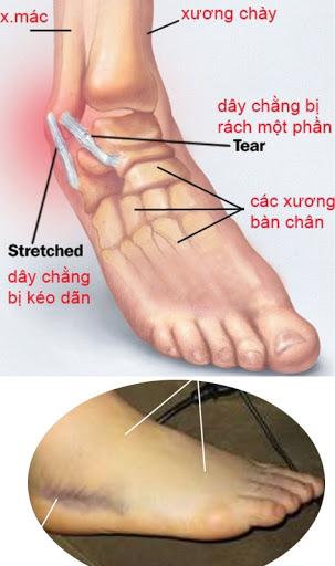 Hình ảnh bong gân cổ chân