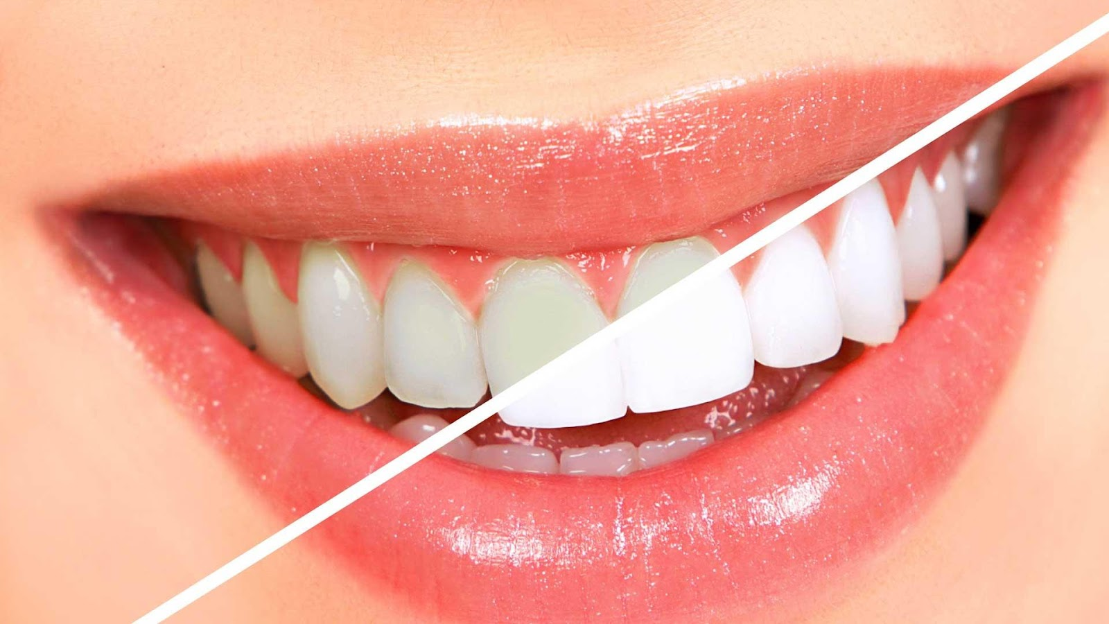 Teeth Whitening in Lahore, Pakistan - Laser Teeth Whitening