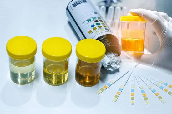 Tổng hợp các thông tin quan trọng về xét nghiệm tổng phân tích nước tiểu - Ảnh 1