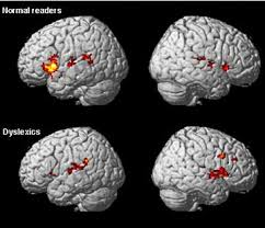 Image result for brain scan dyslexia