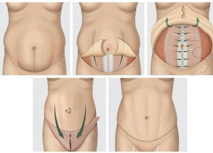 Phẫu thuật tạo hình thành bụng - Cho eo thon chắc - Ảnh 2