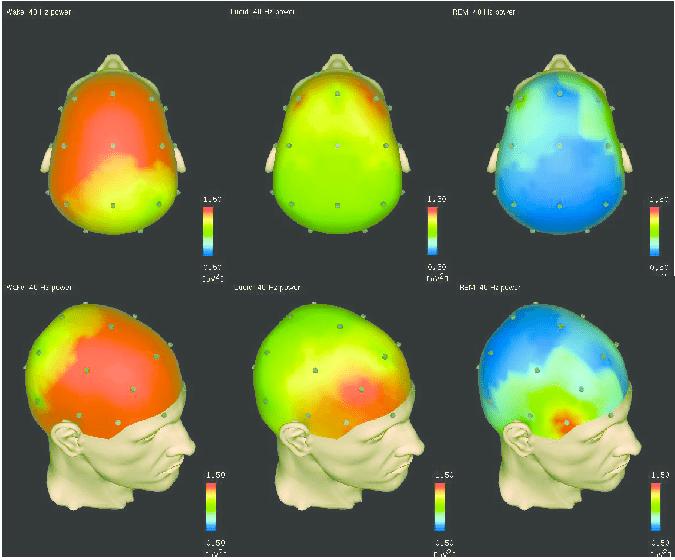potência de 40 Hz padronizada (36 × 45 Hz) em vigília (esquerda), sonho lúcido (meio) e sono REM (quadro direito) em um único sujeito.  As imagens topográficas são baseadas em episódios de EEG sem movimento e são corrigidas para artefatos oculares.  Para cada estado, os valores de potência são calculados em média no respectivo episódio.  Comparado ao sono REM, o sonho lúcido mostra um aumento da atividade de 40 Hz em todo o córtex.  O aumento é mais forte nas regiões frontais.  Comparado ao despertar, as regiões frontal e parietal são ativadas de maneira semelhante no sonho lúcido.