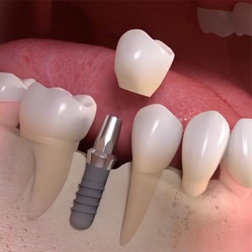 Description: teeth in an hour implant dentist Brooklyn NY