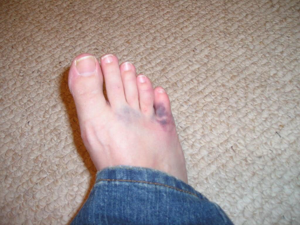 lowerextremityinjury / Amanda Johnson- Broken Phalanges (toes)