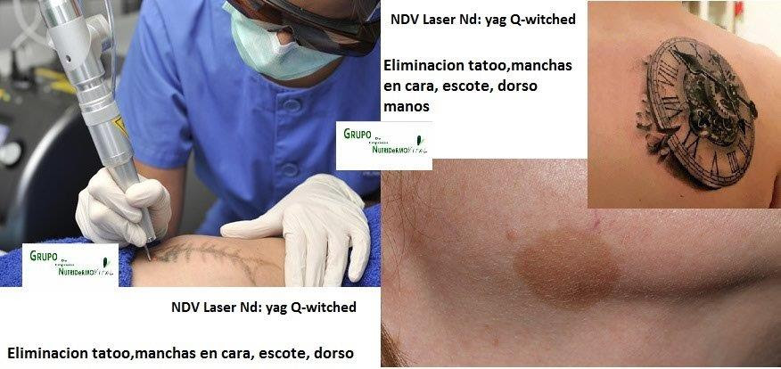 Láser Q Switched Para Eliminar Tatuajes Y Manchas Cara Escote