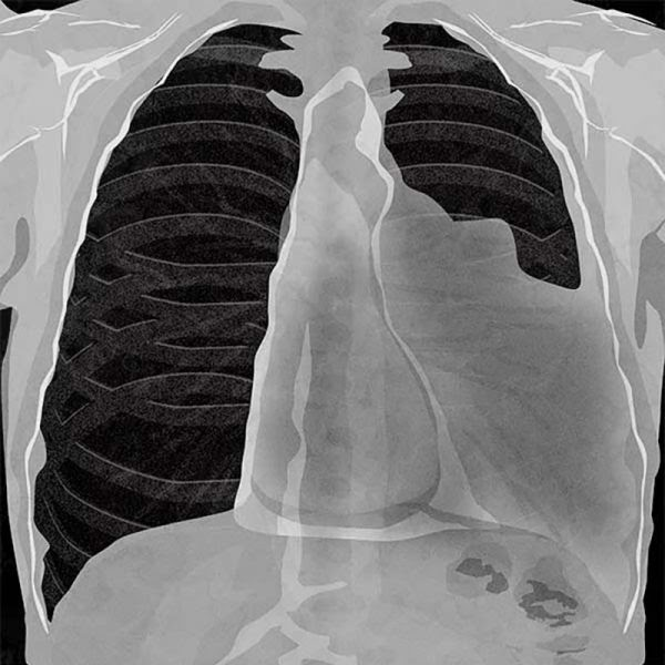Mesothelioma: How Has Paul Kraus Survived For Over 20 ...