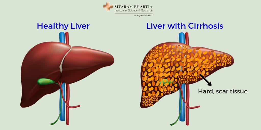 Ivermectin 12 mg brand name in india