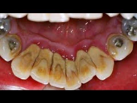 Harga Cara Merawat Gigi Yang Ditambal d31fa8f15e