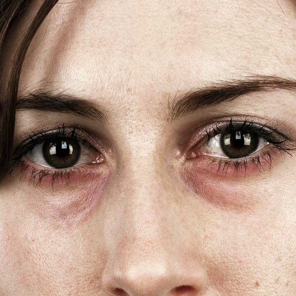 How to get rid of dark circles under the eyes - Good ...