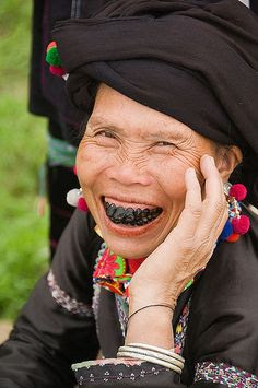 Black Teeth - Lu hill-tribe woman - Vietnam. Black teeth are a cultural and traditional sign of beauty.