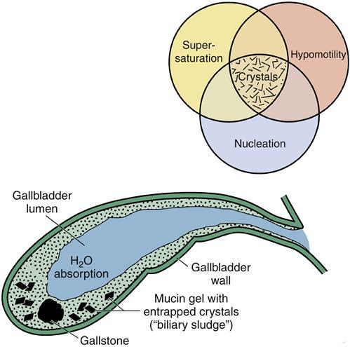 Alterations in Function of the Gallbladder and Exocrine ...
