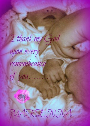 Makenna, baby with anencephaly