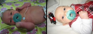 The left is obviously when she was in the NICU, under 7 days old. The right is one of her two month pictures.