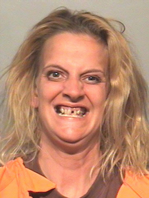 Image result for hillbilly woman missing a front tooth