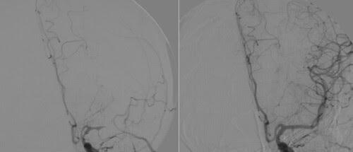 Trombolisis intraarterial