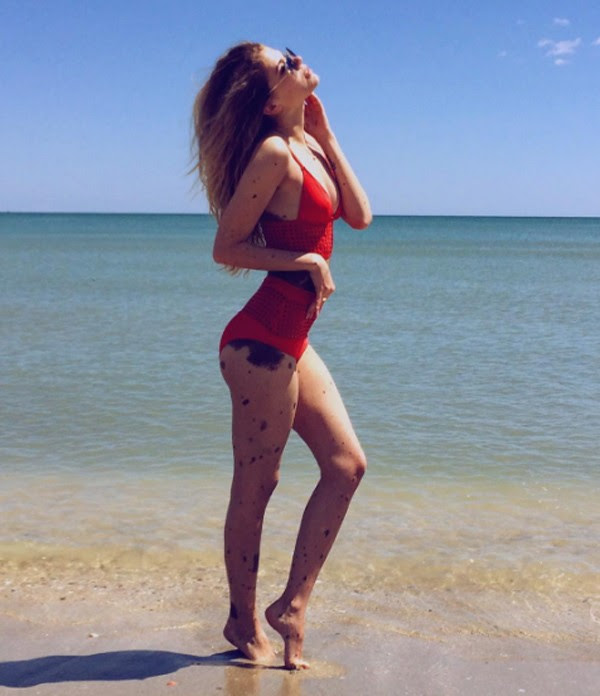 Yulianna Yossef tem 22 anos e inspira muitas mulheres a se aceitarem (Foto: Reprodução Instagram)