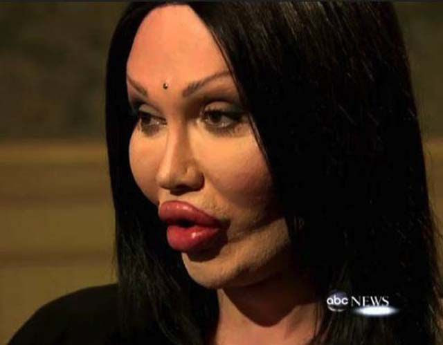 The Horrors of Terrible Plastic Surgery