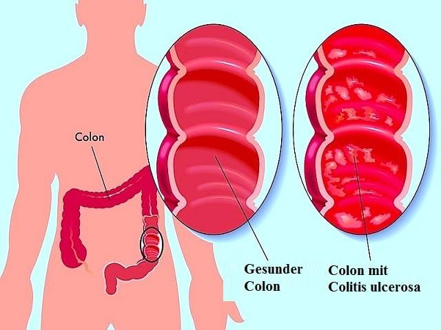 Colitis ulcerosa, Symptome, Rektum, Ernährung ...