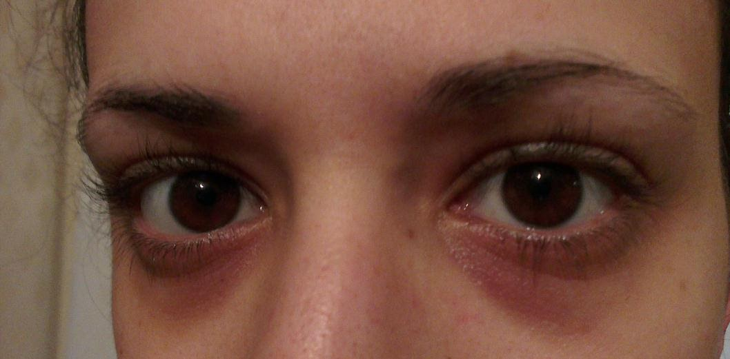 Under eye skin
