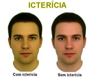 Resultado de imagem para fotos de pessoas com hepatite