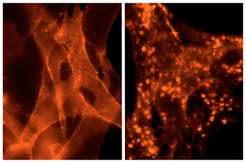 On the left, a group of FAP-labeled cells glow orange in the presence of a fluorogen dye.  After the cells are treated with an agonist that activates the G protein-coupled receptors, the receptors move to the inside the cell, leaving many fewer on the surface, as shown in the image on the right.