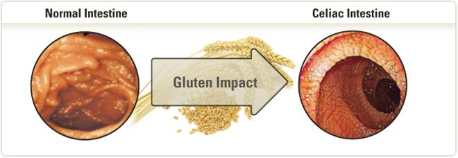 apassionforscience / 2014 1T1 Group 4 - Celiac Disease