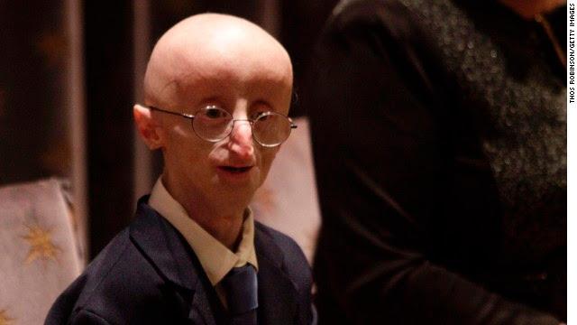 Ele morreu aos 17 anos com uma jovem doença envelhecimento prematuro raro admirado