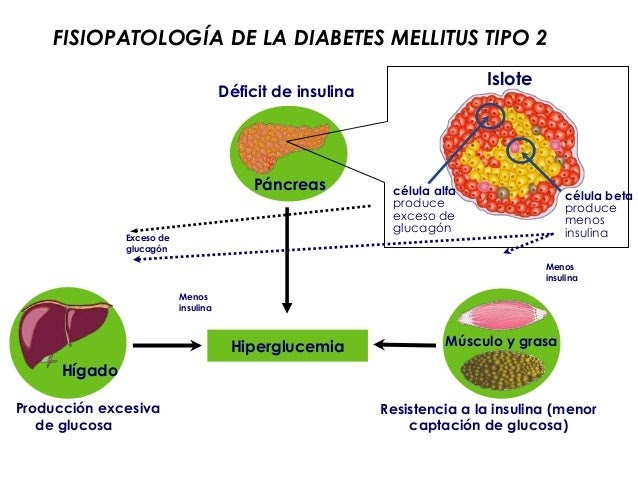 diabetes tipo 1 patogenia