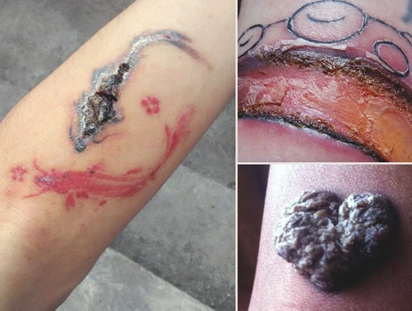 Tattoo Infection 101 How Do You Know If Your New Ink Is Infected