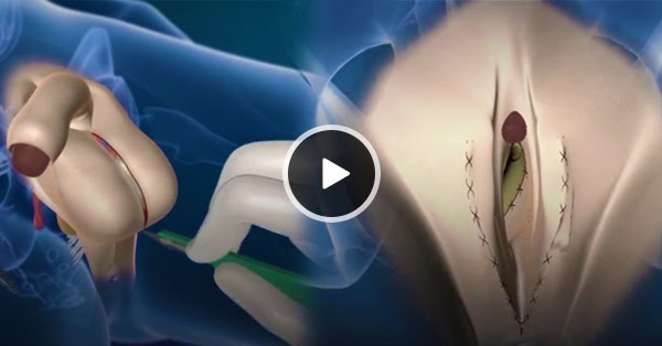 Todays Viral Watch How Gender Reassignment Surgery -3727