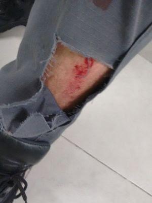 Calça de policial ficou rasgada após suspeito dar socos e chutes em Praia Grande (Foto: G1)