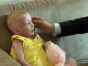 Pippie Kruger teve a pele reconstituída. (Foto: BBC)