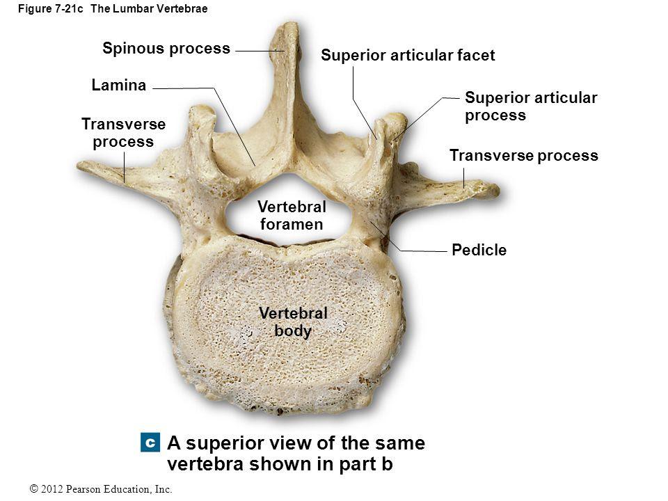 Figure+7 21c+The+Lumbar+Vertebrae