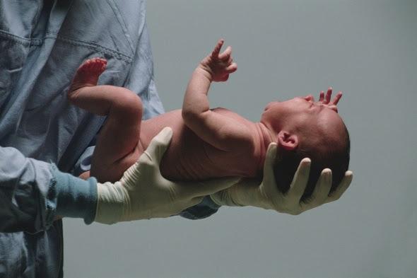 Η άμβλωση