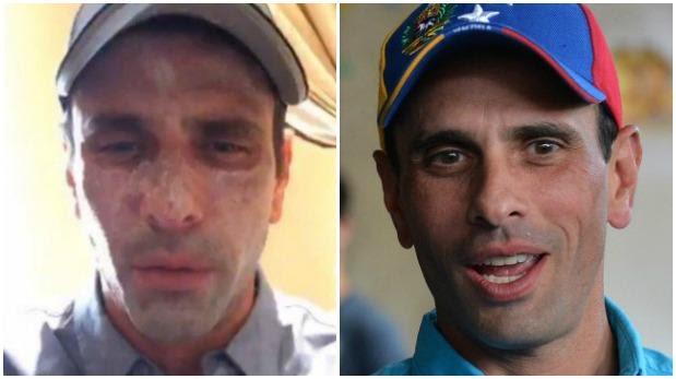 Henrique Capriles viaja a EE.UU. por lesiones en la cara