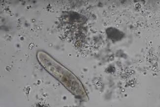mind-controlled-microbes-Paramecium-1