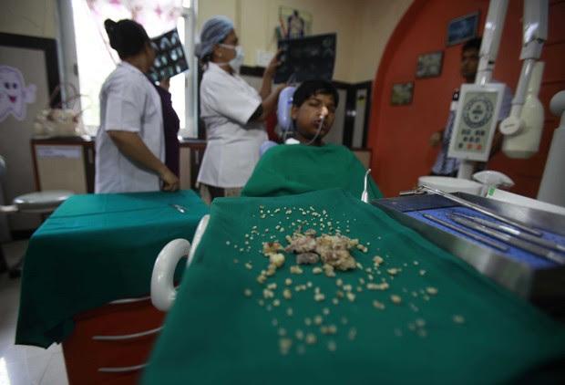 Ashik Gavai teve 232 debtes extraídos durante cirurgia em hospital de Mumbai, na Índia (Foto: Imtiyaz Shaikh/Anadolu Agency/Getty Images)