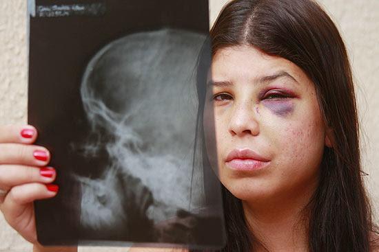 A estudante de enfermagem Ana Cláudia Karen Lauer, 20, com o raio-X de seu nariz, em casa no interior de SP