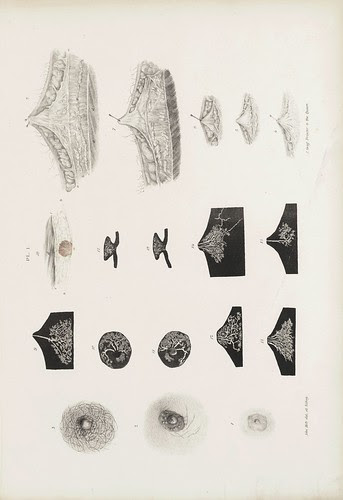 The External Appearance of the Nipple in the Male at Different Ages (Cooper, 1840)