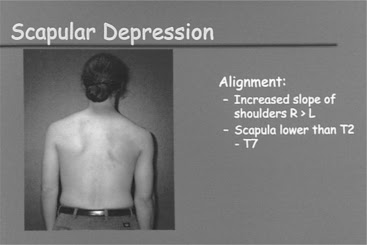 Movement Impairment Syndromes of the Shoulder Girdle ...