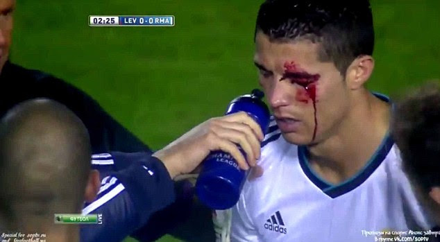Cut up: Cristiano Ronaldo was left bleeding after being caught by an elbow from David Navarro (below)