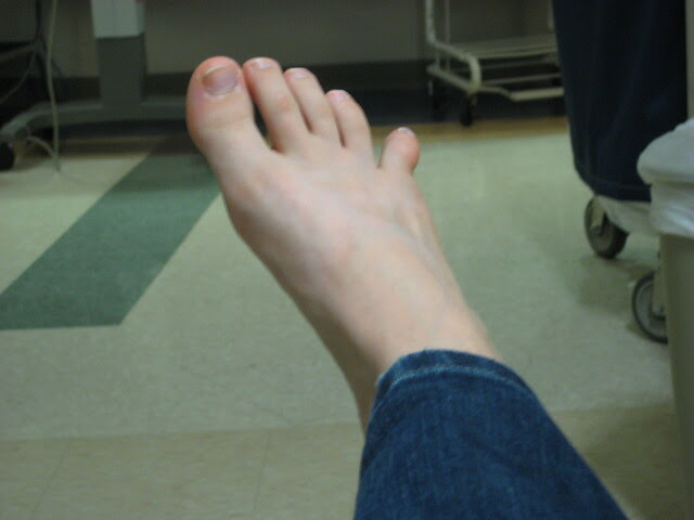 broken & dislocated toe | Flickr - Photo Sharing!