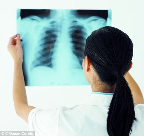 The female patient had the lung operation in December 2012 (posed by model)